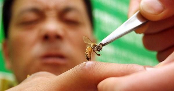 лечение пчеложалением