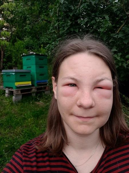 укус в лицо