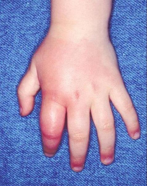укус в палец